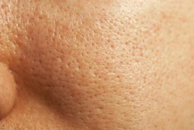 Unhealthy Pore Reduction